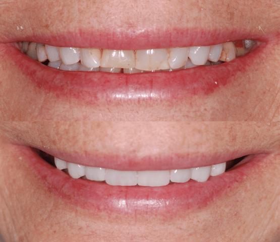 Un merveilleux sourire pour cette patiente. Voici une arcade complète fait de couronnes et porcelaine.