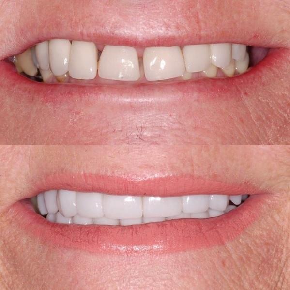rehabilitation complete des-dents avec couronnes et facettes