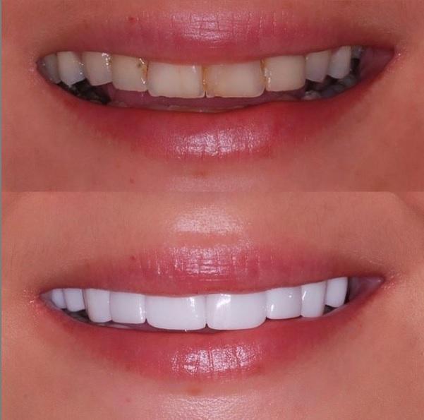 Smile Makeover Bouche complete en porcelaine